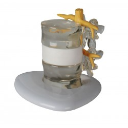 Symulator przepukliny krążka międzykręgowego